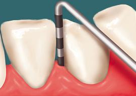 Parodontology