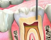 Tratamentul de canal – endodontia