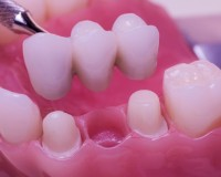 Implant sau punte dentara?