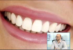 Fatete sau ortodontie? Sau poate… Lumineers.